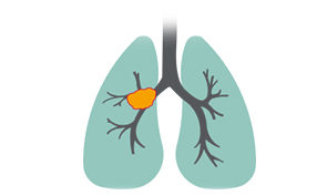 advanced squamous non-small cell lung cancer lung