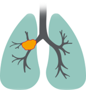 Illustration of lung with advanced squamous non-small cell lung cancer (NSCLC) carcinoma